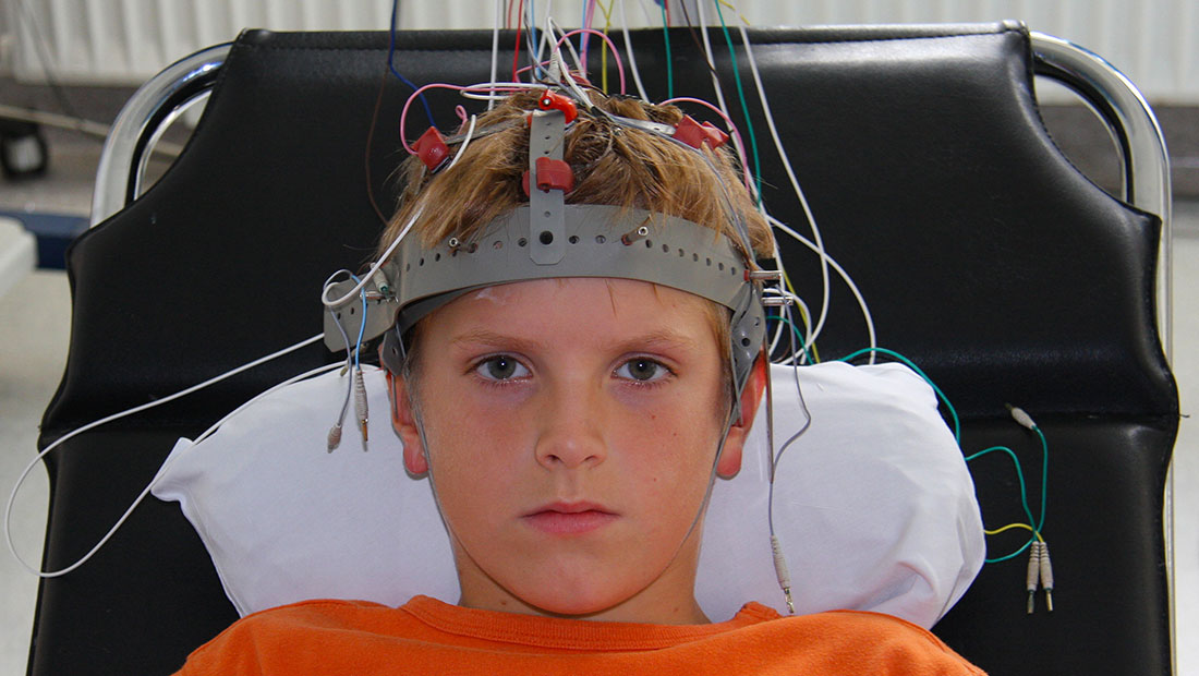 Epilessia: arriva il Perampanel
